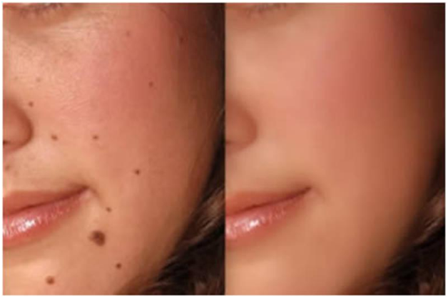 How to get rid of unsightly moles and regain your confidence